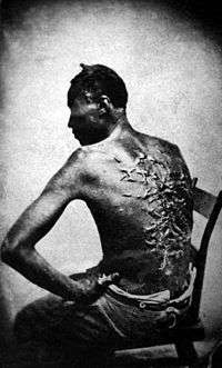 A slave's scars after being whipped